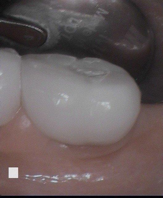Cathy P Implant 4